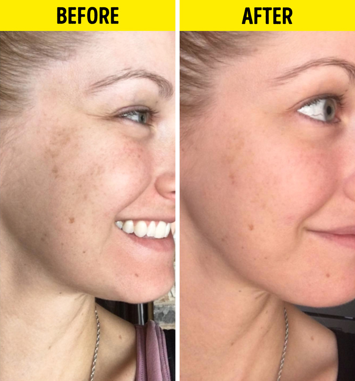 6 Ways Vitamin C Serum Can Be Good for Your Skin
