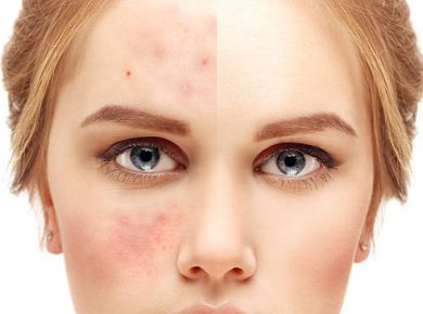 Clear Up Acne Scars
